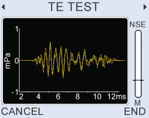 (OPTIONAL TEOAE)  Live TEOAE waveform