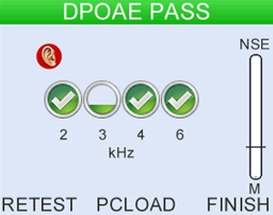 Fast and clear Pass/Refer result 2, 3,or 4 bands pass criteria.