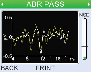 The Otoport ABR continually monitors Fsp and ABR waveform shape to ensure a 'Clear Response' is a true response.